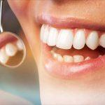 ¿Cuál es el proceso para colocar un implante dental?